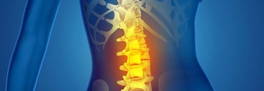 artrodese indolor site